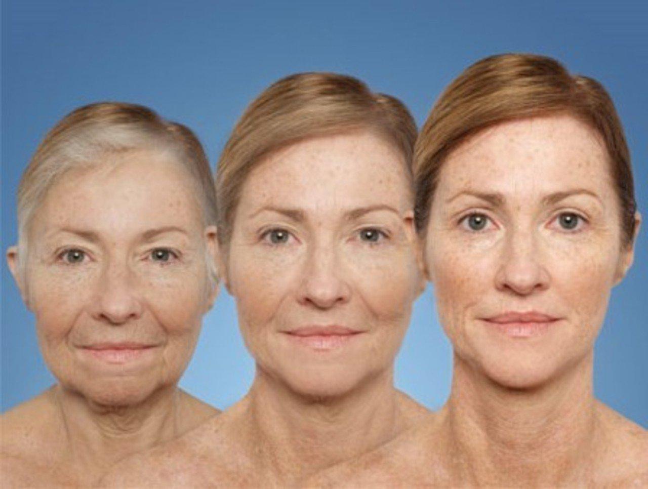 встаете фото возрастных изменений лица по возрастам нужна белая или