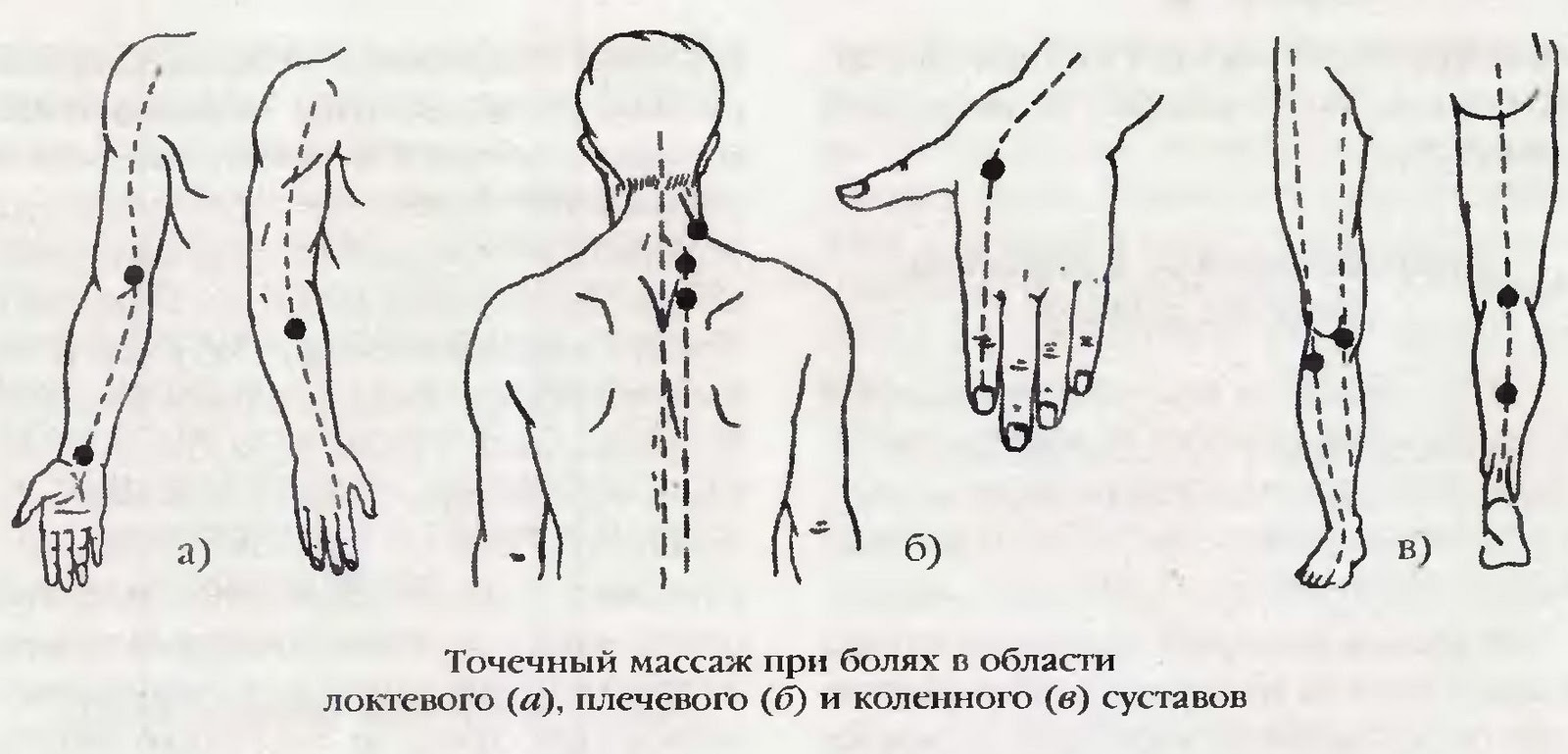 массаж при артрите нужно пробовать все