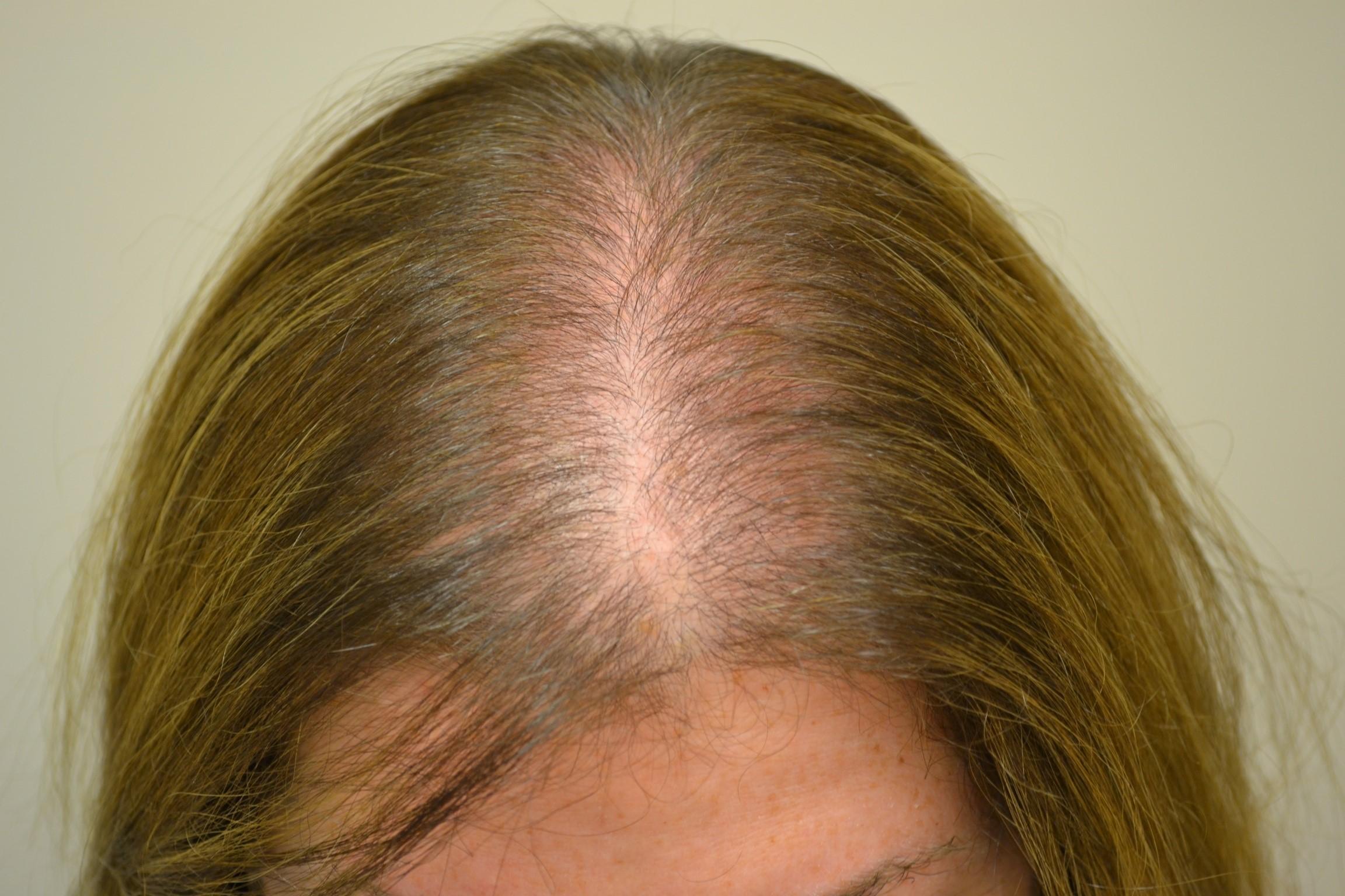 Пантенол за косу како се користи