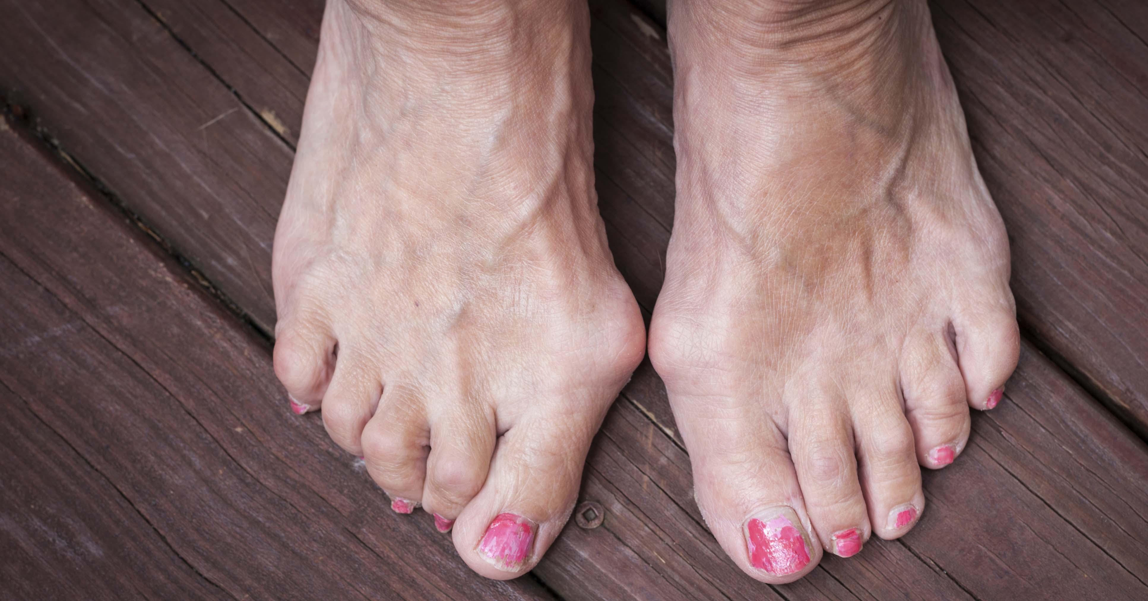 Удаление косточки на ноге - хирургическое в домашних условиях без операции
