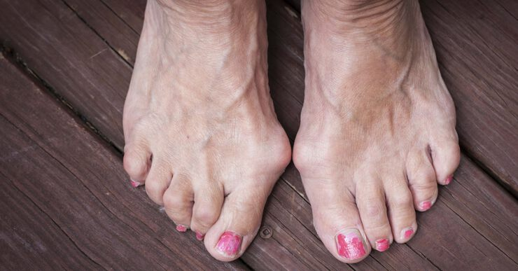 Операция по удалению косточек на ногах